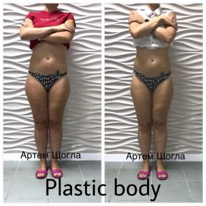 plastic body